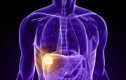 Tumore al fegato_14161.jpg