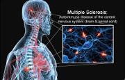Sclerosi multipla_11846.jpg