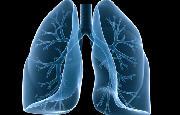 Tumore al polmone_2432.jpg