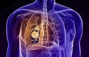 Tumore al polmone_14244.jpg