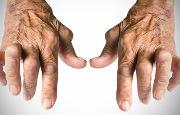 Artrosi e artriti_14261.jpg