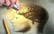 Morbo di Alzheimer_5694.jpg