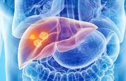 Tumore al fegato_12122.jpg