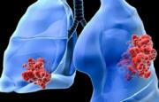 Tumore al polmone_4424.jpg