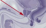 Tumore alla prostata_5016.jpg