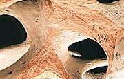 Osteoporosi_3445.jpg