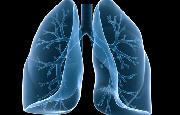Tumore al polmone_5324.jpg