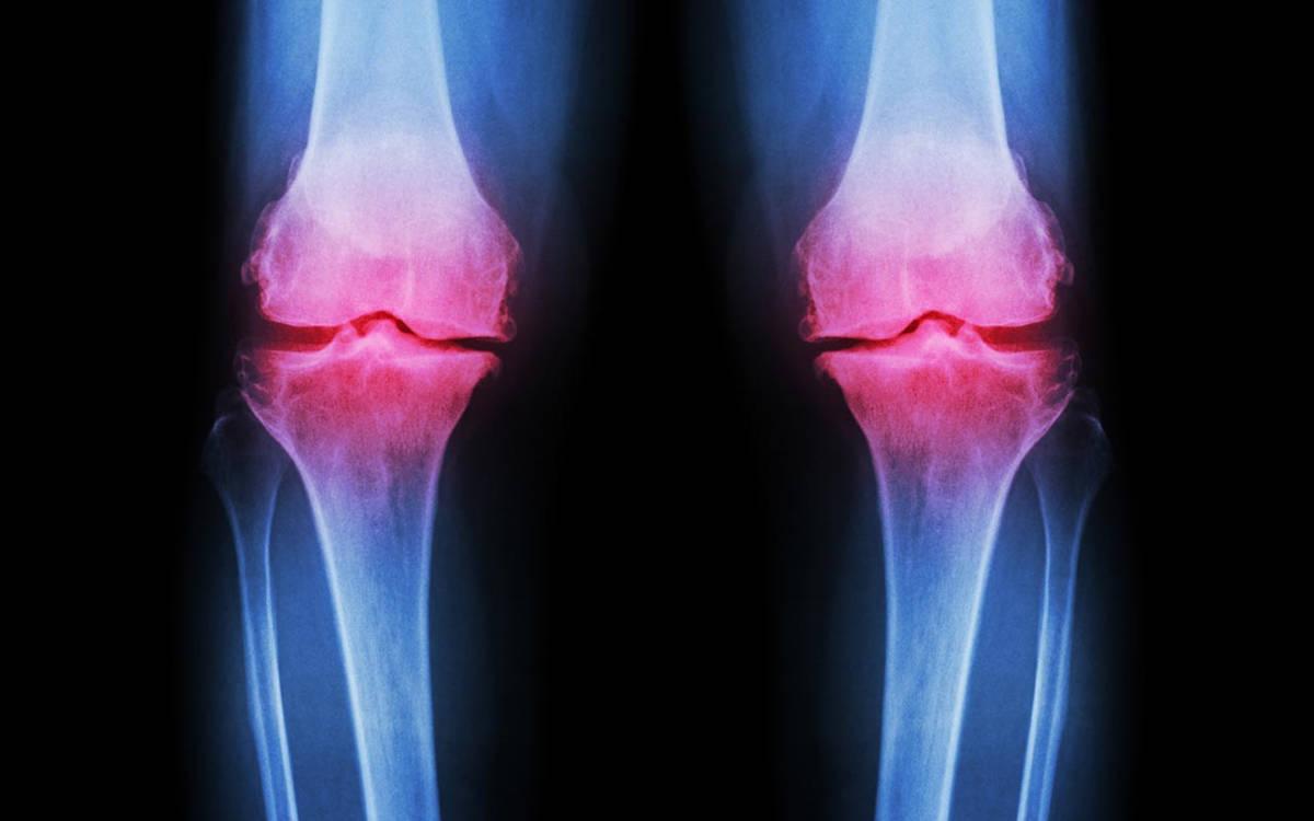 Artrosi e artriti_2596.jpg