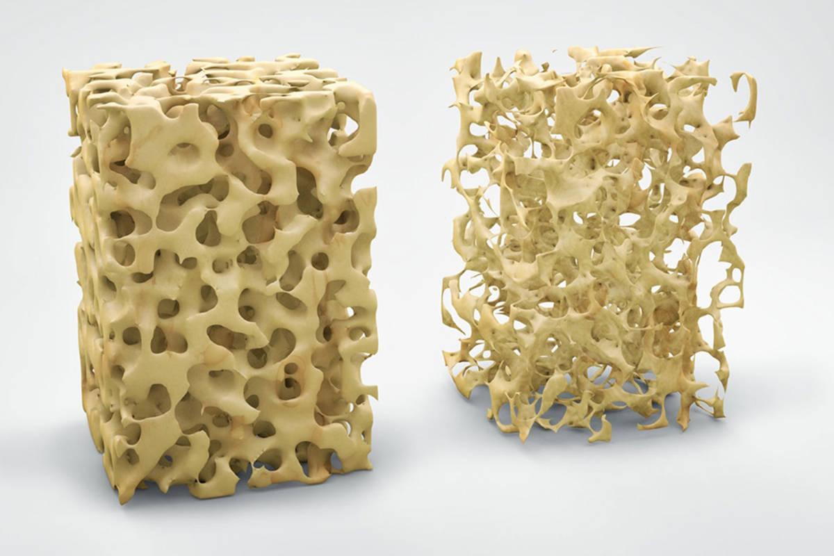 Osteoporosi_14006.jpg