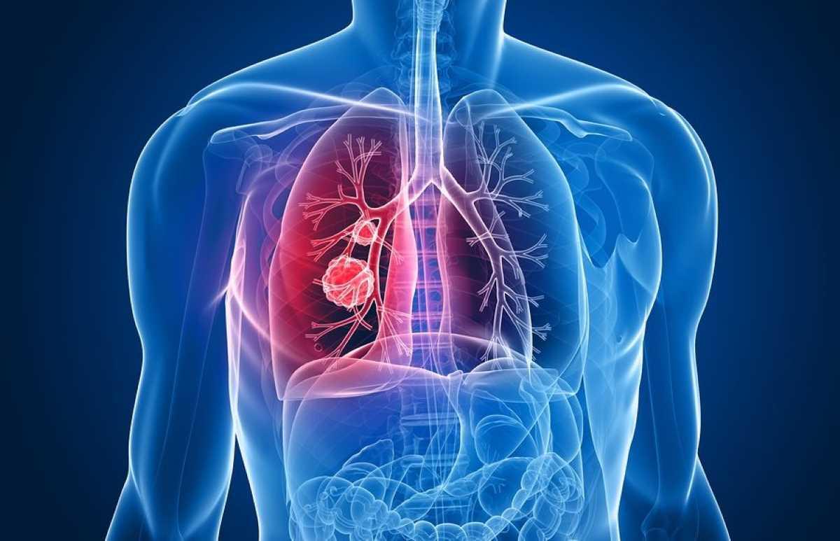 Tumore al polmone_1441.jpg