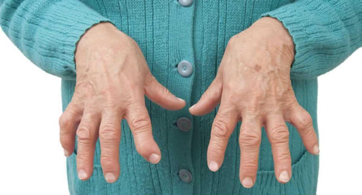 Artrosi e artriti_3853.jpg