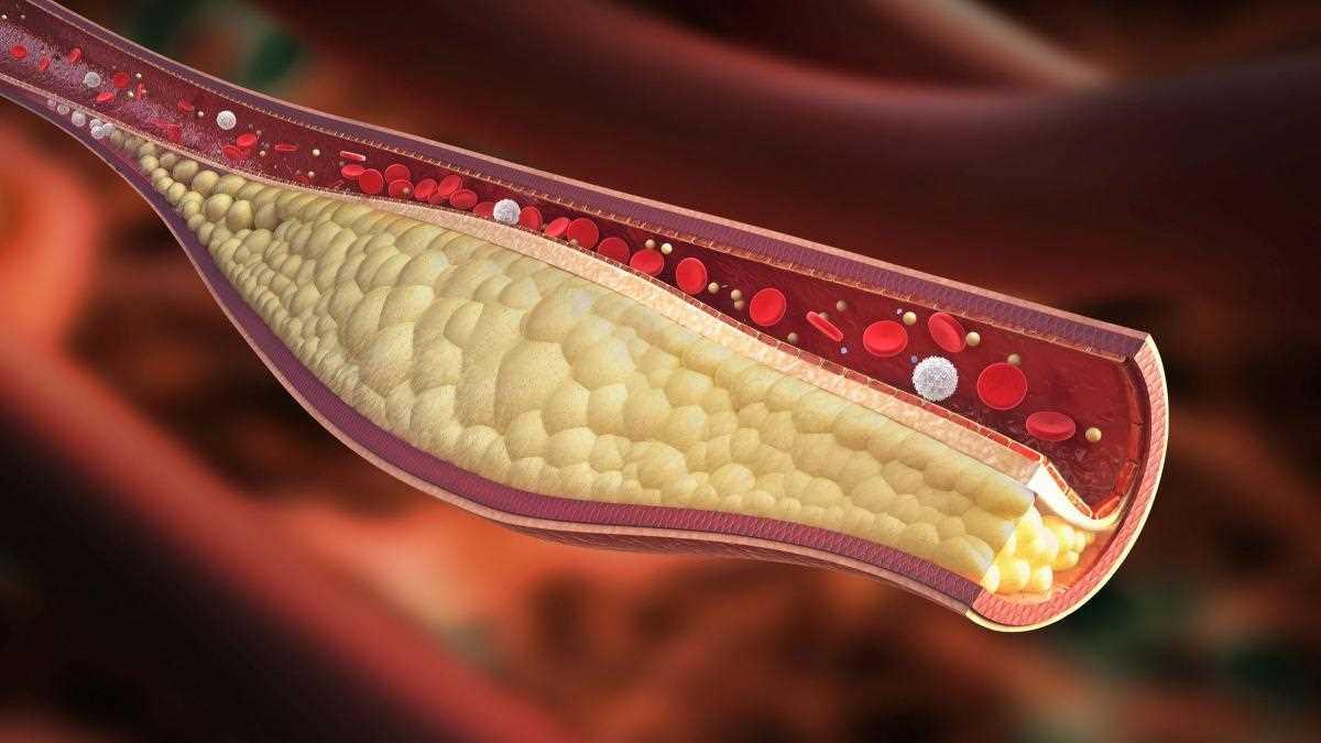 Arteriosclerosi_14064.jpg