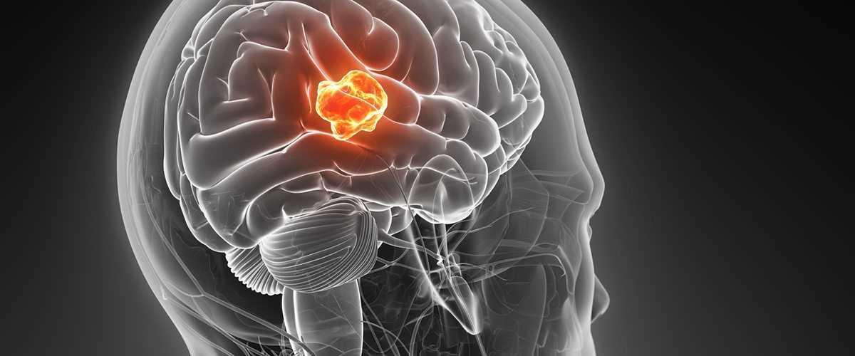 Tumori cerebrali_7654.jpg