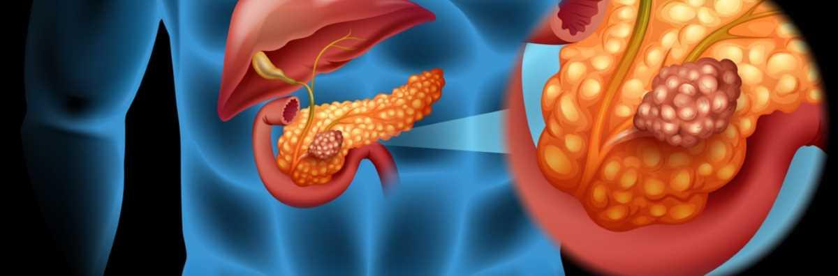 Tumore pancreas_8526.jpg