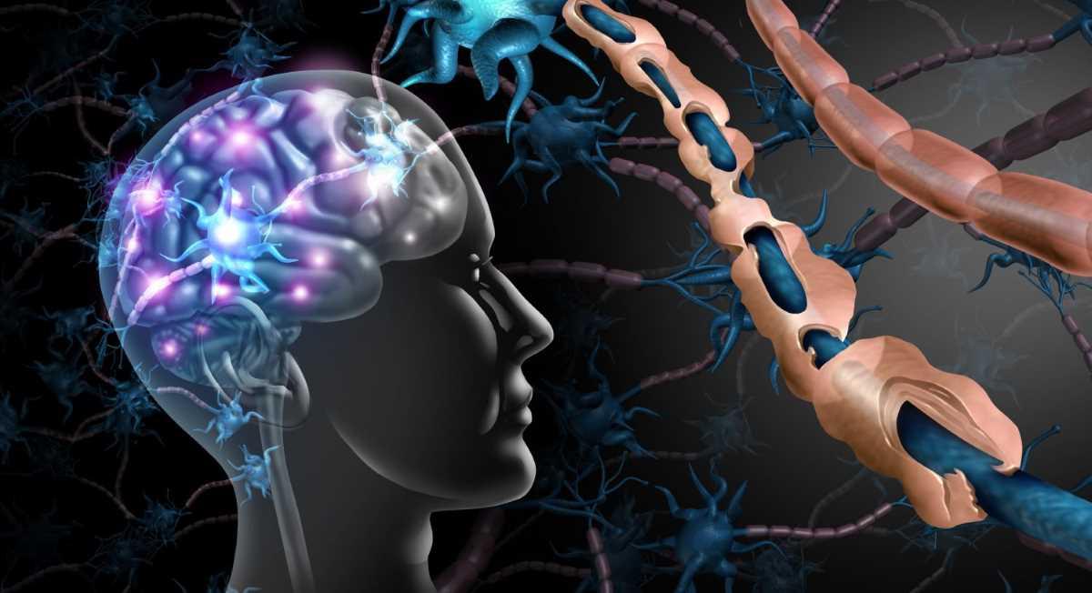 Sclerosi multipla_14441.jpg