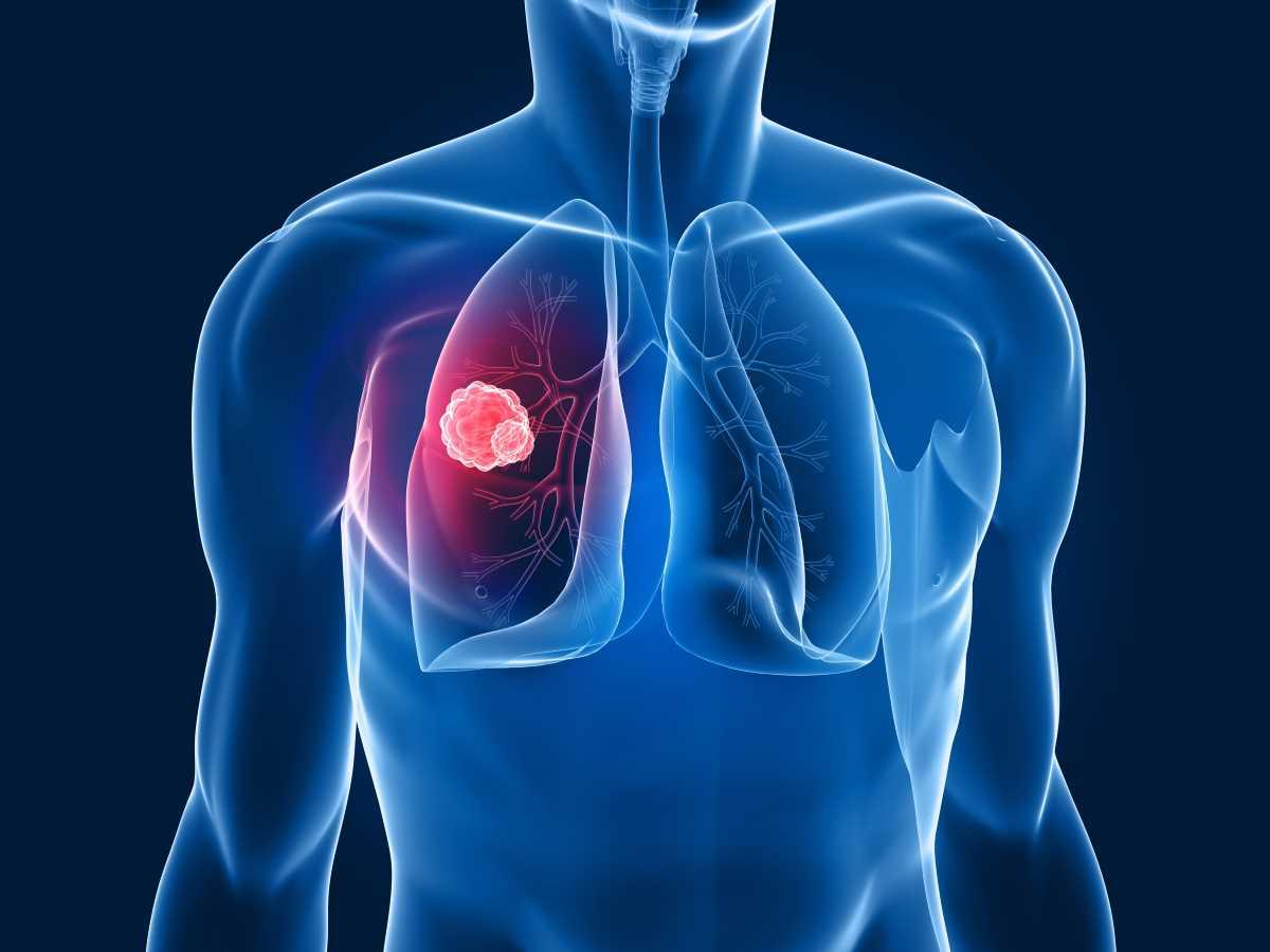 Tumore al polmone_2668.jpg