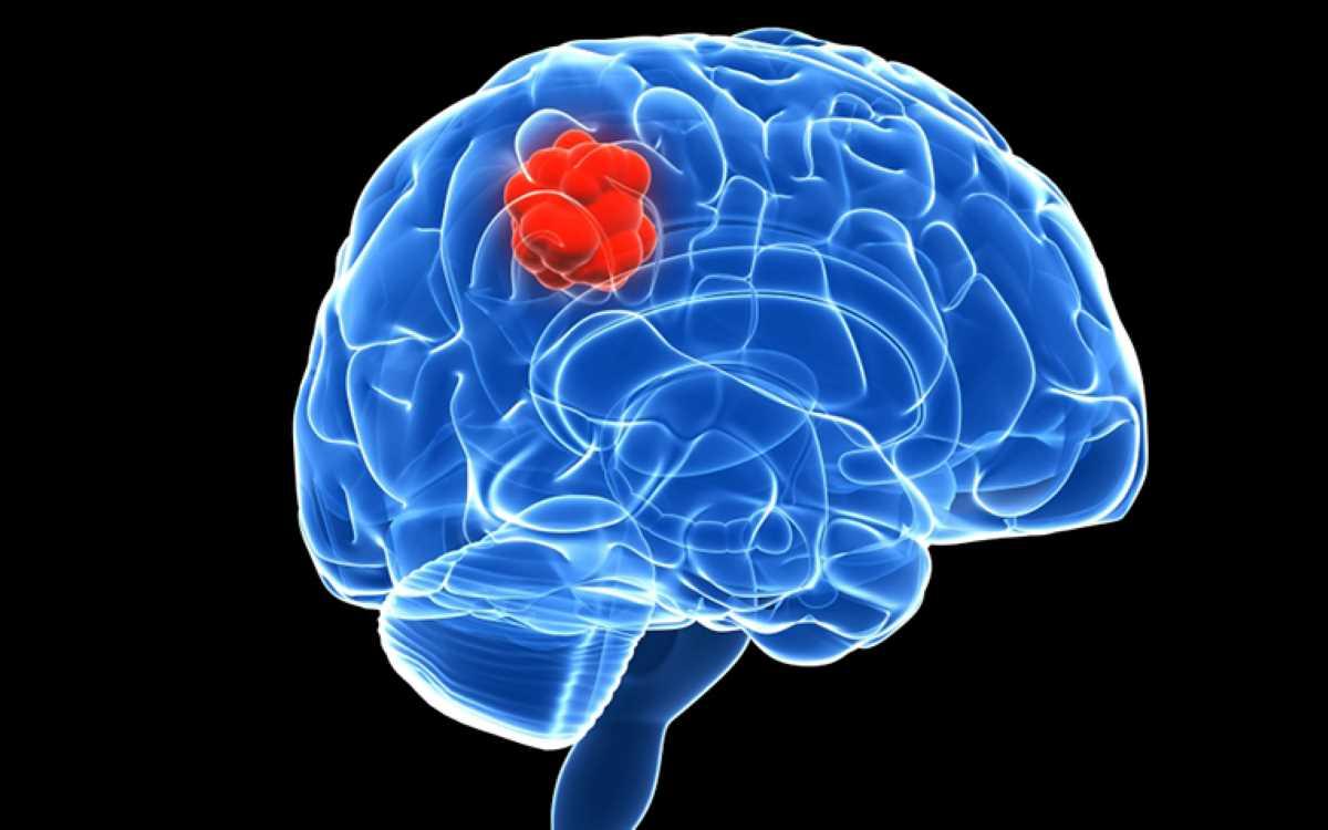 Tumore cerebrale_3080.jpg