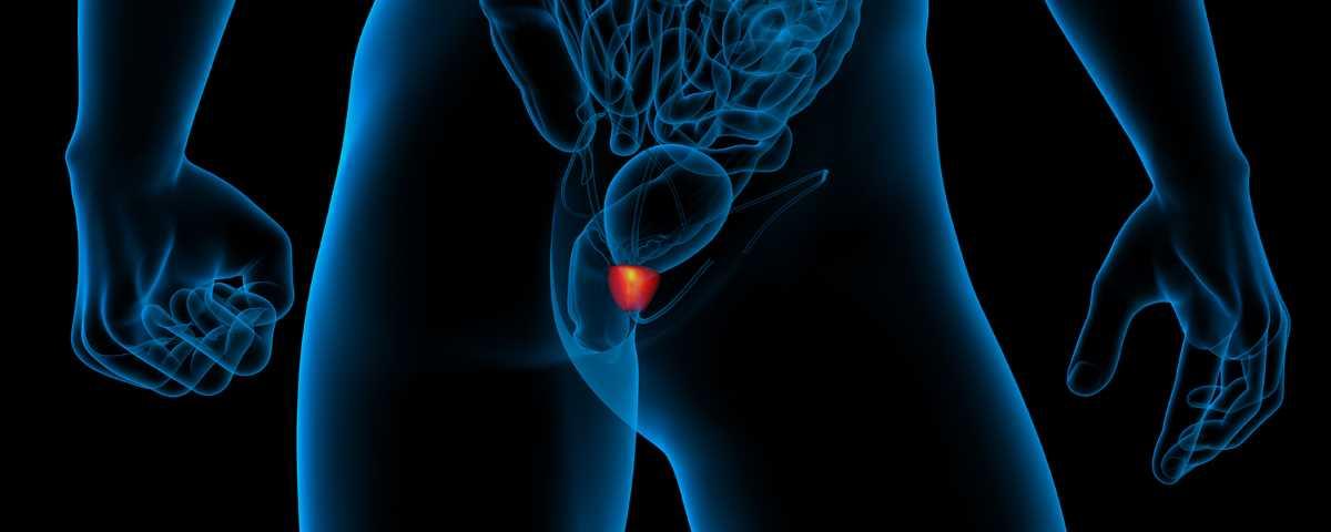 Tumore alla prostata_4654.jpg