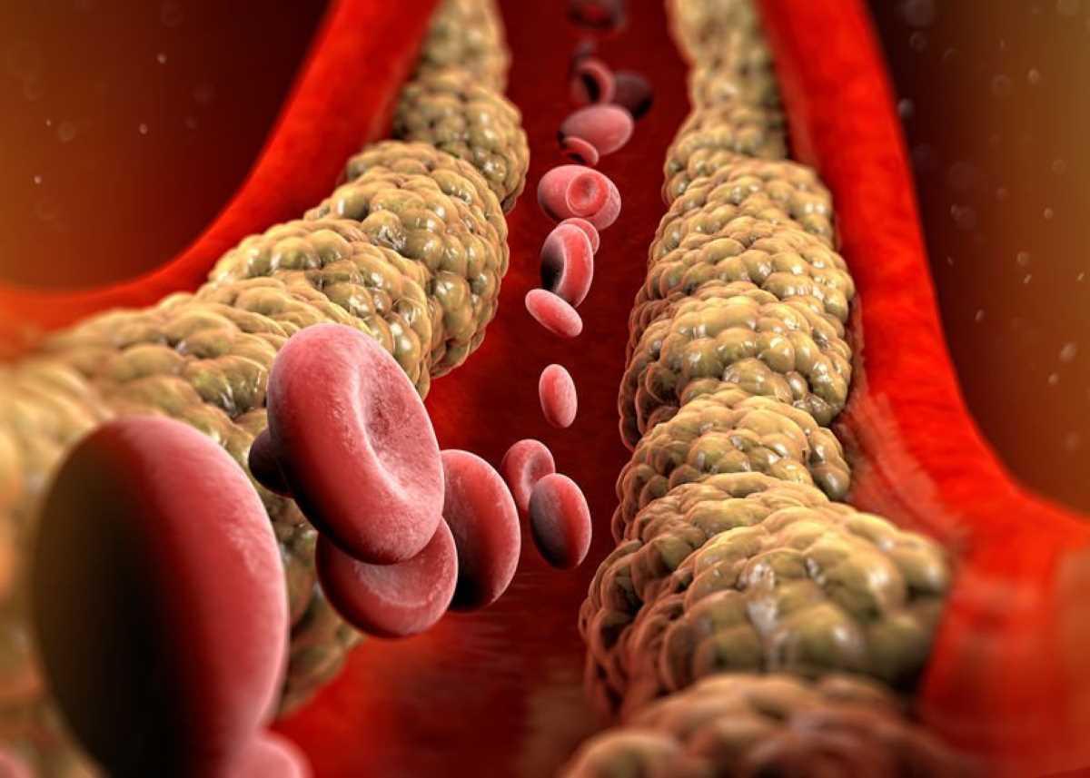 Arteriosclerosi_9868.jpg