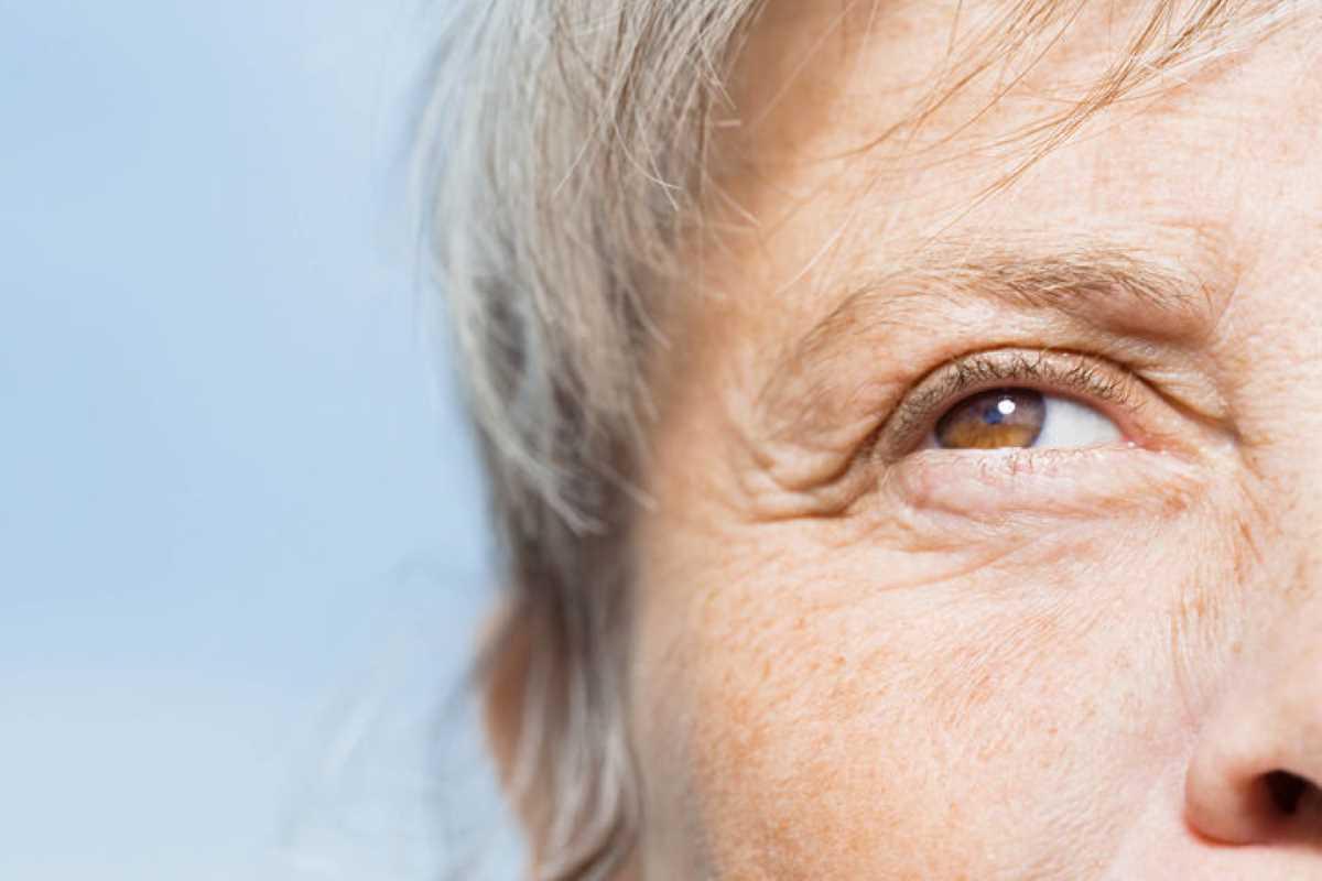 Morbo di Alzheimer_5341.jpg
