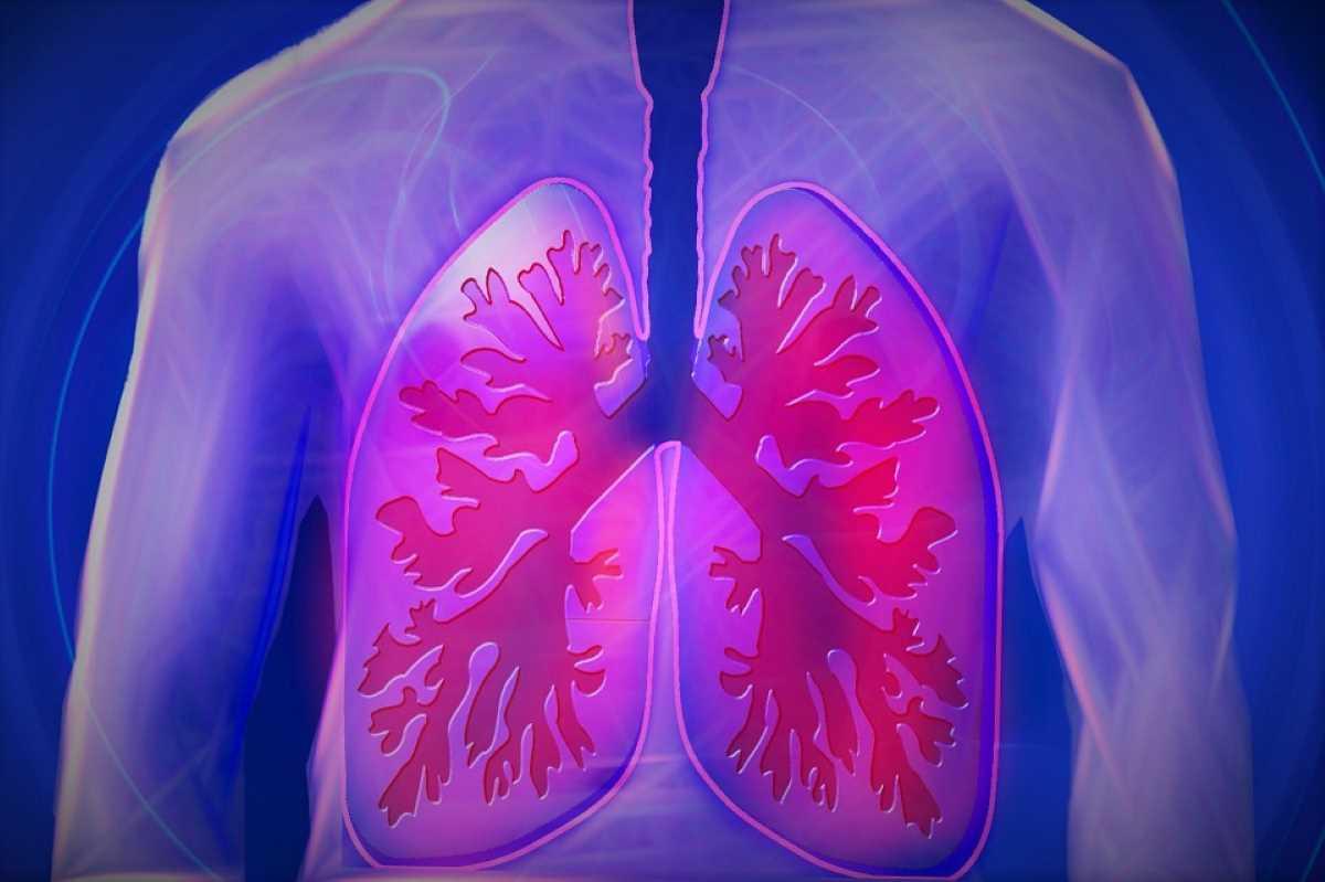 Tumore al polmone_4332.jpg
